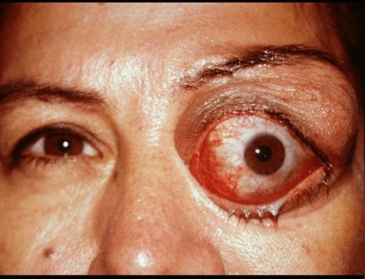 паразиты теле человека глисты