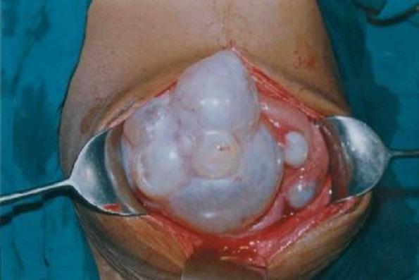 черви паразиты лечение
