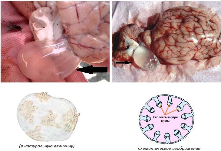 паразиты в головном мозге лечение