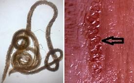 Gongylonema pulchrum и Gongylonema verrucosum