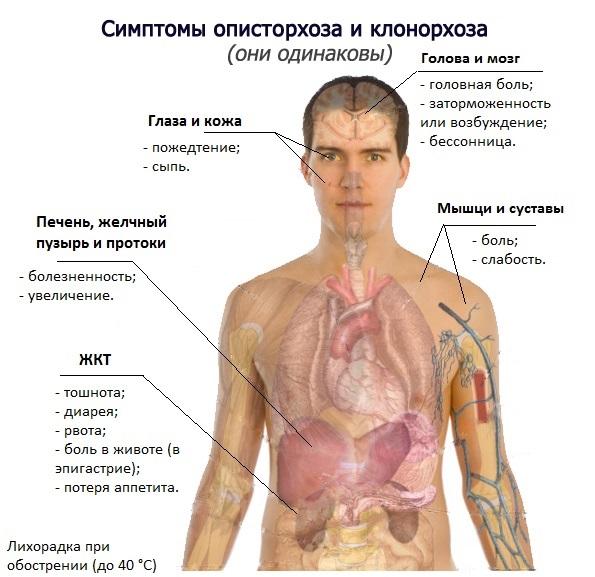 Симптомы описторхоза и клонорхоза