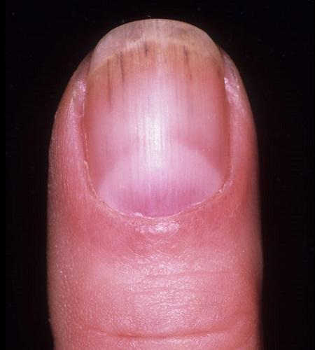 Кровоизлияния под ноготь при трихинеллезе