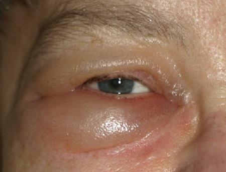 Отек глаз при трихинеллезе