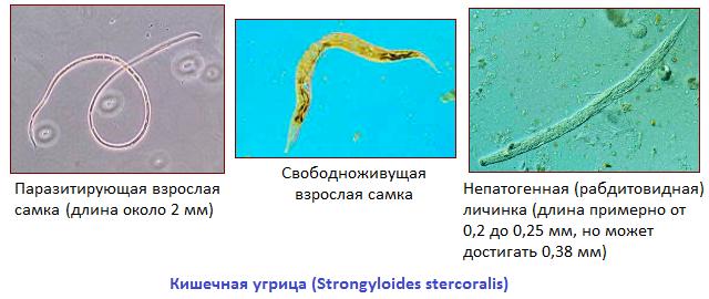 глисты у человека в печени симптомы