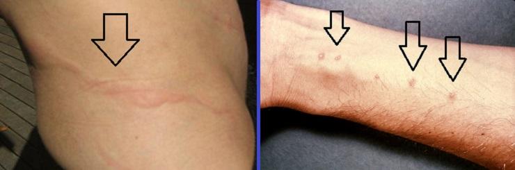 Фото сыпи на коже при шистосомозе