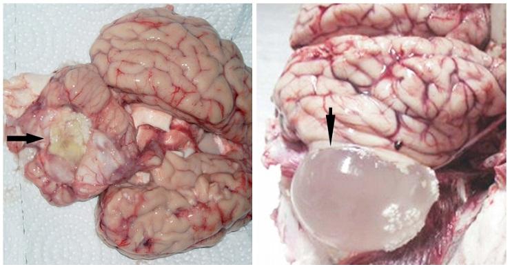 паразиты в голове человека симптомы