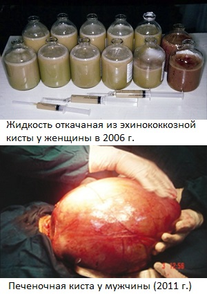 Два случая обнаружения гигантской эхинококкозной кисты