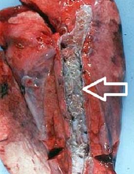 паразиты в бронхах симптомы и лечение