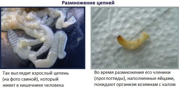 мелкие глисты у человека фото