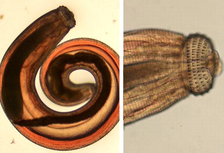 Третья личиночная форма Gnathostoma spinigerum