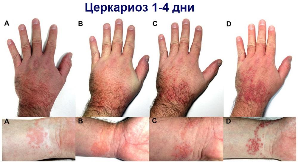Динамика изменения сыпи при циркариозе на фото за 4 дня