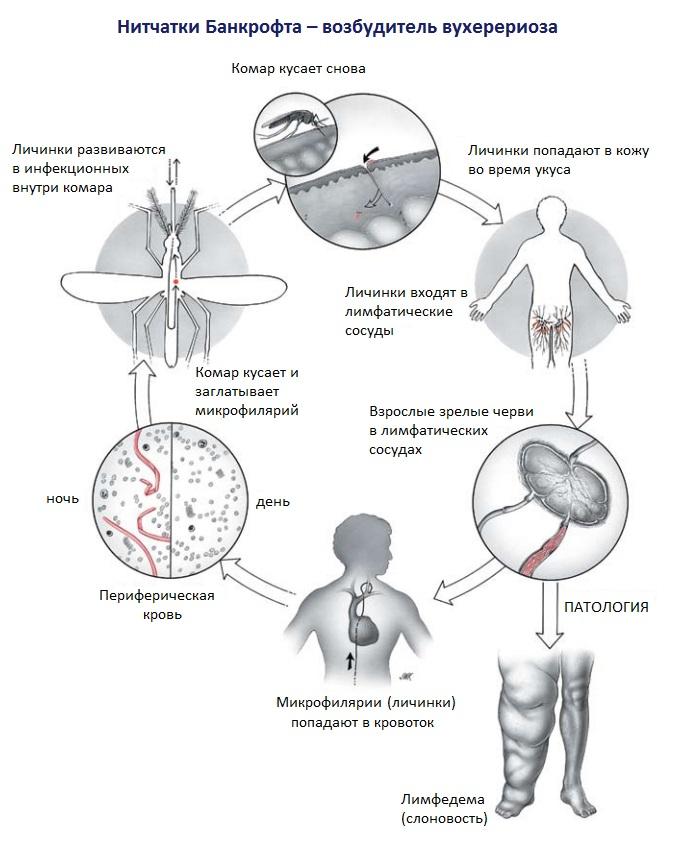 Жизненный цикл возбудителя вухерериоза (нитчатки Банкрофта)