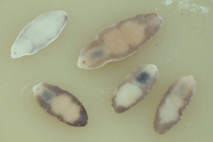 Возбудители фасциолопсидоза – трематоды Fasciolopsis buski