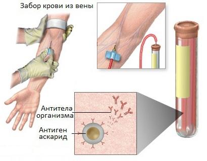 Анализ крови на антитела к аскаридам