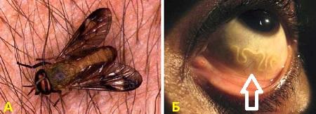глисты в глазах человека фото